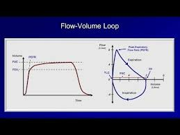 Pulmonary Function Tests Pft Lesson 2 Spirometry Youtube