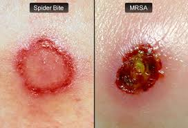 Mercers Disease Mrsa Pictures Mrsa Skin Infection Symptoms