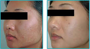 if you are looking for an option to get rid of the unwanted acne scars this is the right place here you will find information on the best acne scar
