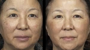 Fraxel for asian skin