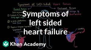 Right Vs Left Sided Heart Failure Chart Symptoms Of Left Sided Heart Failure Video Khan Academy