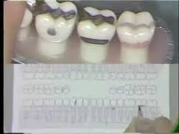 Manual Charting In Dentistry Dental Charting Procedures