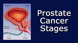 「prostate cancer」の画像検索結果