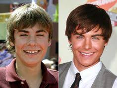 middle island dental works celebrity teeth before and after veneers because celebs want the