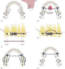 Maxillary Second Molar Maxillary Second Molar An Overview Sciencedirect Topics