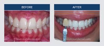 Who Wants A B1 Tooth Shade Blue Court Dental Centre Harrow