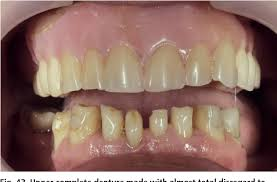 Teeth Setting Figure 43 From Aesthetic Possibilities In Removable