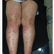 thighs and legs after laser hair