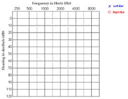 Audiogram Chart Blank Act 1 3 2 Hear Me Loggerpro