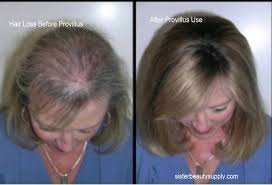 zinc promotes cell growth and keeps hormone levels intact it mainns the levels of dht so that new hair strands can grow