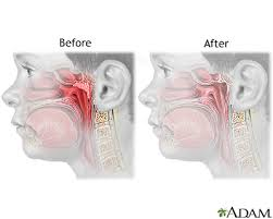 Adenoid Removal Series Aftercare Medlineplus Medical