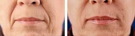 Rimpels rond mond verwijderen