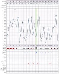 Anovulatory Cycles Ovagraph