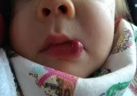 with hemangioma on her lower lip