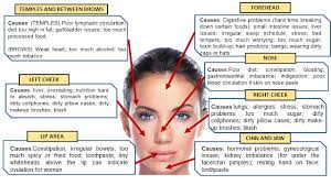 Chinese Acne Face Chart 60 Meticulous Pimple Location Chart