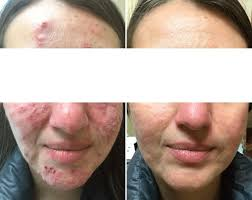 cystic acne treated with accutane
