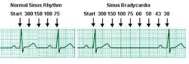Ekg Rate Boxes Here Is Another Way To Do A Rapid Heart