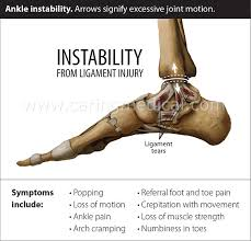 does ankle impingement require surgery