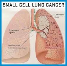 Stage 4 Lung Cancer Survival Rate Small Cell Lung Cancer Survival Rate Regarding Stage 4 Small Cell