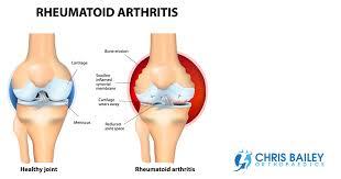 rheumatoid arthritis and knees