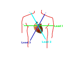 Ecg Primer The Mean Electrical Axis
