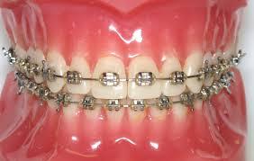 Orthodontic Brackets Under Fontanacountryinn Com