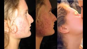 cured severe acne hair loss caused