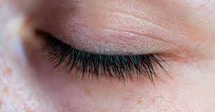 why do my eyelashes hurt potential