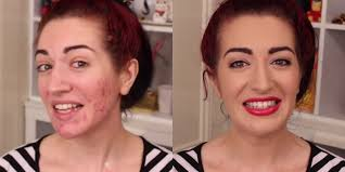 how to cover acne with makeup you