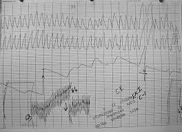 Chart Marking In Polygraph Christoper Morgan Polygraph Charts May 17 1993