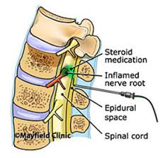 epidural risks