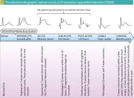 Figure 2 The Electrocardiographic Natural Course In Stemi St