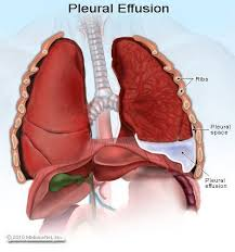 Stomach ribs lungs picture | the lungs are the primary organs of the respiratory system in humans and many other animals including a f. 20 Pleural Effusion Causes Symptoms Treatment Complications