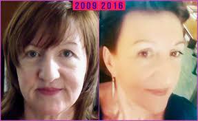 Facial Flex Progress Chart Facial Exercises Before And After Facial Flex Results