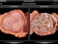 Опухоли поджелудочной железы Реферат страница Читать Опухоли поджелудочной железы могут формироваться как в эндокринной так и в экзокринной ее части но преобладают экзокринные новообразования