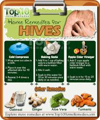 Hives Treatment - Relief From Allergies