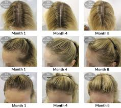 Hairstyles Female Hair Loss Can The Dht That Causes Male Hair Loss Also Affect Women