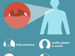 sore throat signs symptoms and
