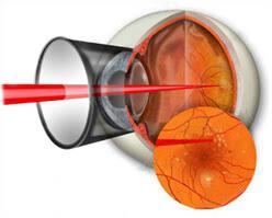 <b>Лазерная</b> коагуляция сетчатки глаза: цены на операцию ППЛК ...