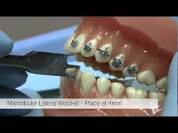 Mbt Bracket Placement Chart American Orthodontics Alexander Lts Brackets Bracket