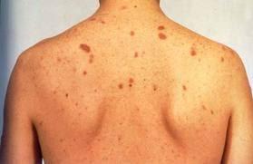 Image result for cka hiv sida