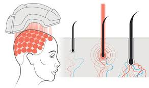 Low Level Laser Therapy - Hair Growth Specialist