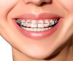 Teeth Braces In Carmel Briarcliff Ny Putnam Orthodontics