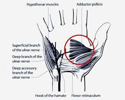 figure 4 course of the deep accessory branch of the ulnar nerve³