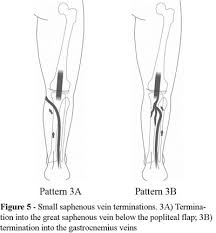 Cranial Extension Of The Small Saphenous Vein When Caudal