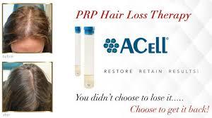 prp hair