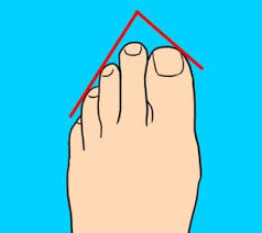 Foot Chart Origin 7 Types Of Toes And The Secrets They Reveal About Your