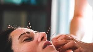 Acupuncture Facelift Points Chart What Is Facial Acupuncture Skin Benefits Cost And Side