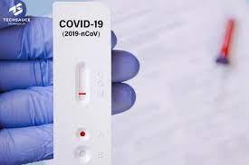 Rapid Antigen Test ชุดตรวจโควิดด้วยตัวเอง คืออะไร  ข้อแนะนำการใช้งานเป็นอย่างไร