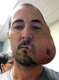 Cancer eats half of man s face New York Post